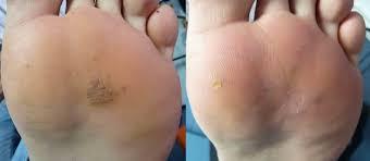 טיפול ביבלות ברגליים