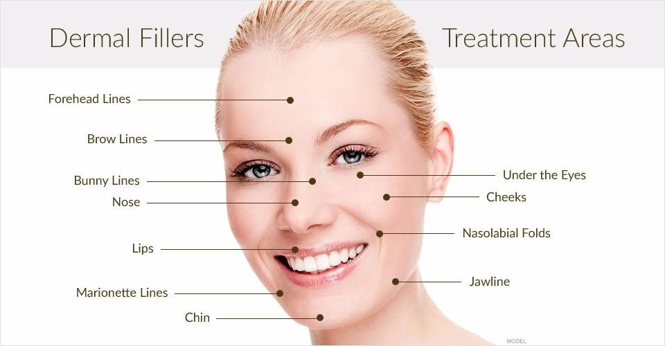 הזרקות חומרי מילוי בבכרמיאל | עיבוי שפתיים בכרמיאל | העלמת שקעים מתחת לעיניים בכרמיאל