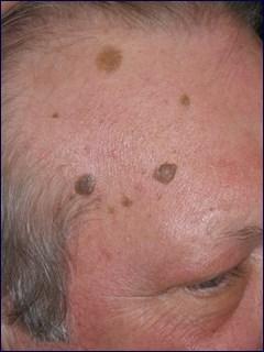 הסרת נקודות חן / שומות לפני הטיפול